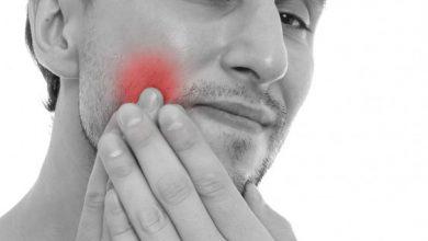 Photo of درد دندان با منشا غیردندانی