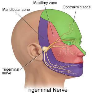 نورالژی, سردرد, دندان درد