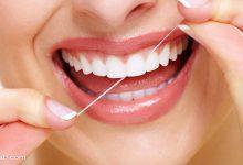 Photo of اهمیت نخ دندان