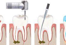 Photo of چند جلسه برای عصب کشی دندان باید وقت گذاشت؟