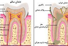 Photo of چرا گاهی دندان باید عصبکشی شود در حالیکه درد نمیکند؟