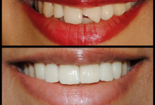 Photo of درباره لمینت دندان چقدر میدانید؟