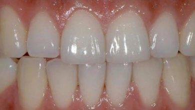 Photo of دلایل هفتگانه اصلی آسیب دیدن دندانها