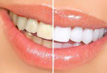 Photo of خمیردندان سفیدکننده برای دندان مناسب است؟