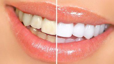 Photo of دندانپزشکی زیبایی چکار میکند؟