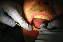 Photo of چرا با مسواک زدن باز هم دندانمان میپوسید؟