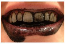 Photo of دندانپزشکی و زغال درمانی