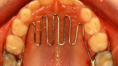 Photo of مرتب کردن دندانهای نامرتب با ارتودنسی