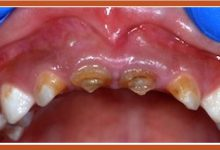 Photo of پوسیدگیهای زودرس دندان در دوران کودکی