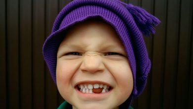 Photo of زود از دست رفتن دندانهای شیری چه عوارضی دارد؟