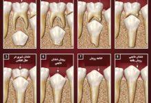 Photo of آیا دندانهای شیری هم ریشه دارند؟