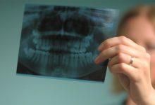 Photo of درباره عکس رادیوگرافی دهان و دندان بیشتر بدانید