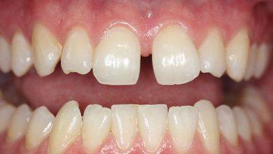 Photo of بیماری ایام میانسالی، جابجاشدن غیرطبیعی دندانها