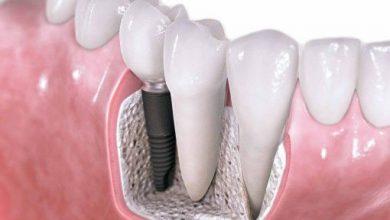 Photo of آیا امکان دارد ایمپلنت دندان عفونت کند؟