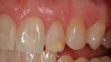 Photo of تغییر رنگ دندان برای چیست؟