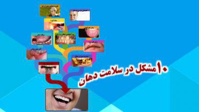 Photo of سلامت دهان و ده مشکل شایع آن