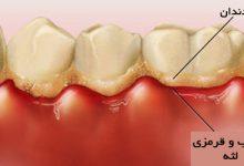 Photo of کارهای که باعث جرم دندان میشود