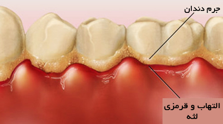 جرم دندان