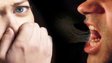 Photo of انواع بوهای مختلف دهان