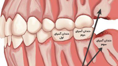 Photo of برای کشیدن دندان عقل عجله نکنید!