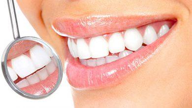 Photo of تاثیر سلامت و سفیدی دندانها در چهره