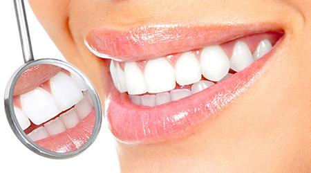دندان سفید,سفیدی دندانها