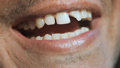 Photo of علت شکستن دندان چیست؟