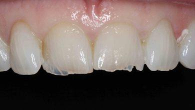 Photo of خرابی دندان با پرخوری عصبی