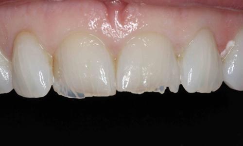 شکستگی دندان