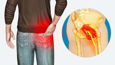 Photo of با چند روش ساده میتوان درد سیاتیک را کاهش داد
