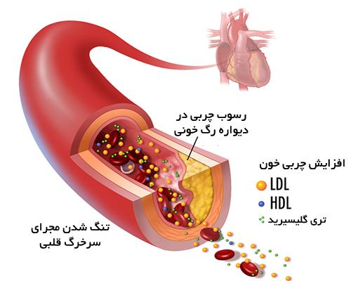 افزایش چربی خون - پرمطلب