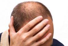 Photo of دلایل و درمان ریزش مو در طب سنتی