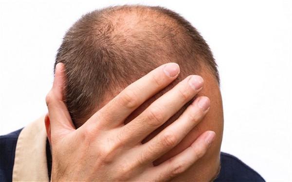 دلایل و درمان ریزش مو در طب سنتی