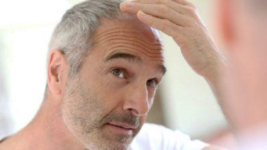 Photo of باورهای درست و غلط درباره سفیدی موها