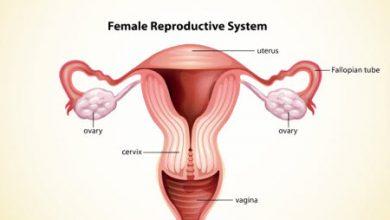 Photo of چسبندگی لبهای کوچک واژن و بسته شدن آنها در کودکان دختر