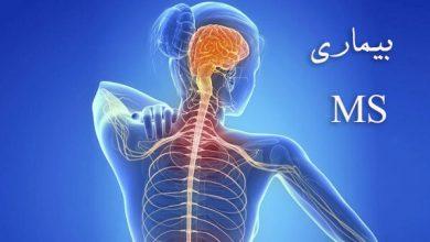 Photo of چند روش برای طول عمر بیشتر در بیماری MS
