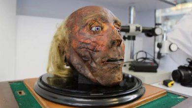 Photo of موزه اعضاء بدن انسان های معروف