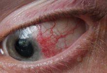 Photo of آنچه در مورد درمان انحراف چشم باید بدانید
