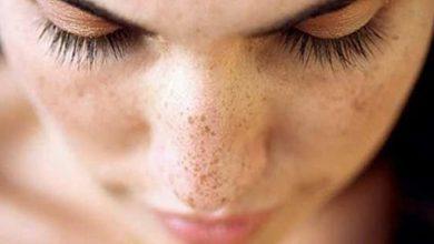 Photo of جلوگیری از لکهای صورت در فصل تابستان