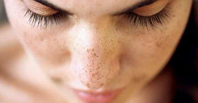 جلوگیری از لکهای صورت در فصل تابستان