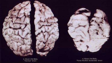 Photo of رویداد های مهم تحول مغز کودک از تولد تا ۱۲ ماهگی