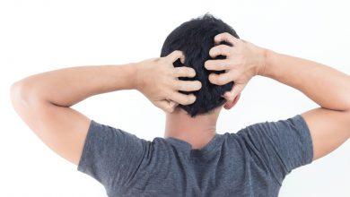 Photo of بین خارش پوست سر و ریزش مو چه رابطهای وجود دارد؟