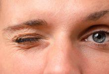 Photo of پرش پلک چشم و علل آن
