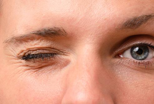 پرش پلک چشم و علل آن