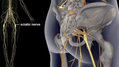 Photo of کاهش درد سیاتیک با شش درمان طبیعی