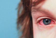 Photo of بررسی دلایل احتمالی قرمزی چشمها