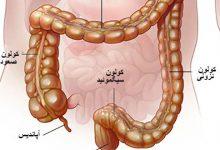 Photo of التهاب روده زخمی یا کولیت اولسراتیو