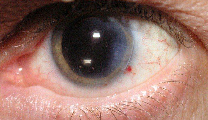 Photo of آیا جراحی آبمروارید میتواند خطرناک باشد؟