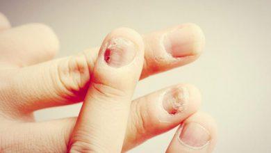 Photo of علائم و درمان عقربک ناخن
